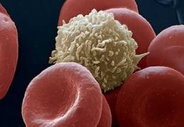 """Serie """"Síndromes Geriatricos"""" : Inmunodeficiencias, prevención y tratamiento"""
